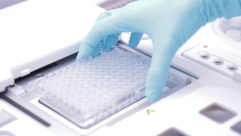 Preimplantation Genetic Screening India